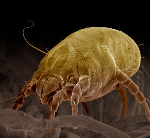 BRAR7J Scanning Electron Micrograph (SEM) of a Dust Mite (Dermatophagoides pteronyssinus), magnification x 700