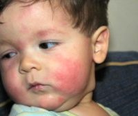 rp_child-allergy2-300x168.jpg
