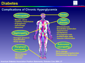 Cause of Hypoglycemia