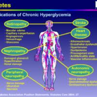 rp_hyperglcemia.symptoms-300x224.png